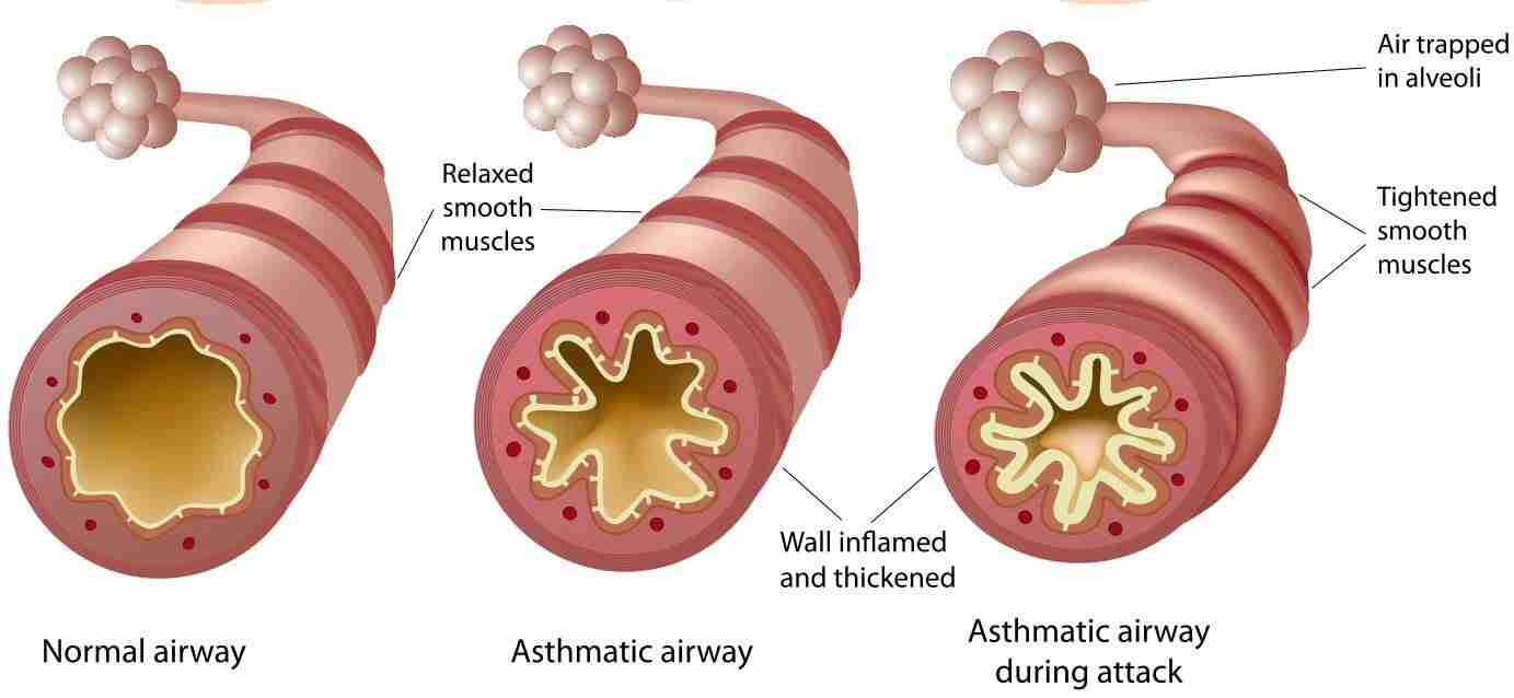 First Aid training - Asthma - Airway